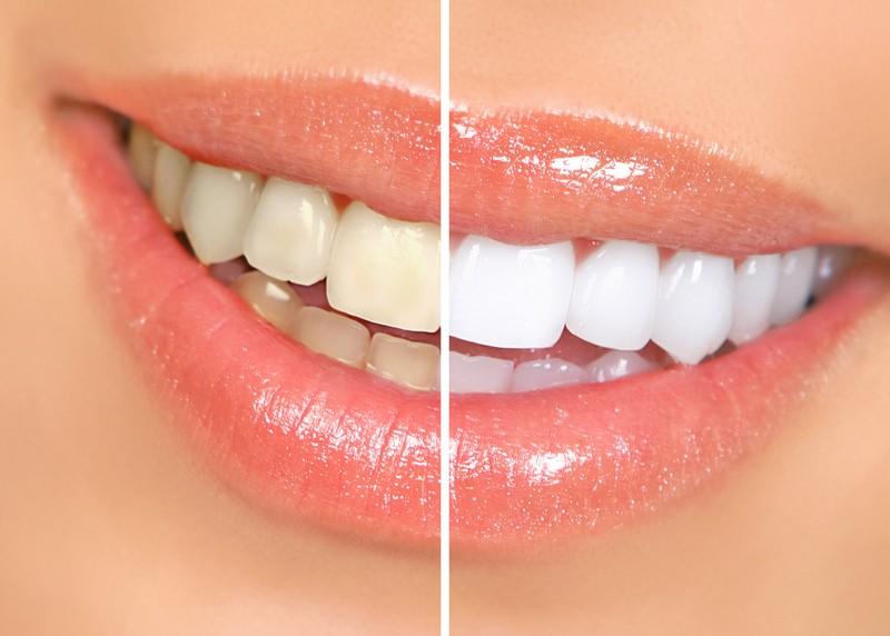 Teeth Whitening Cambridge, WI